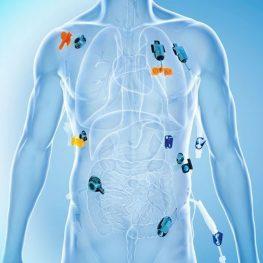 Set camera-100% titan-implantabila, arteriala, large, cu cateter din poliuretan, 5.15 Fr